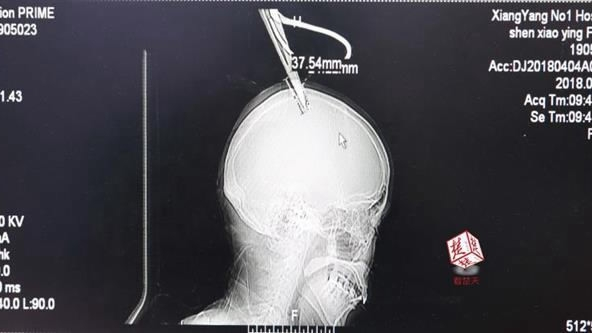 Stuck with scissors in skull, woman calmly takes one-hour bus to the hospital