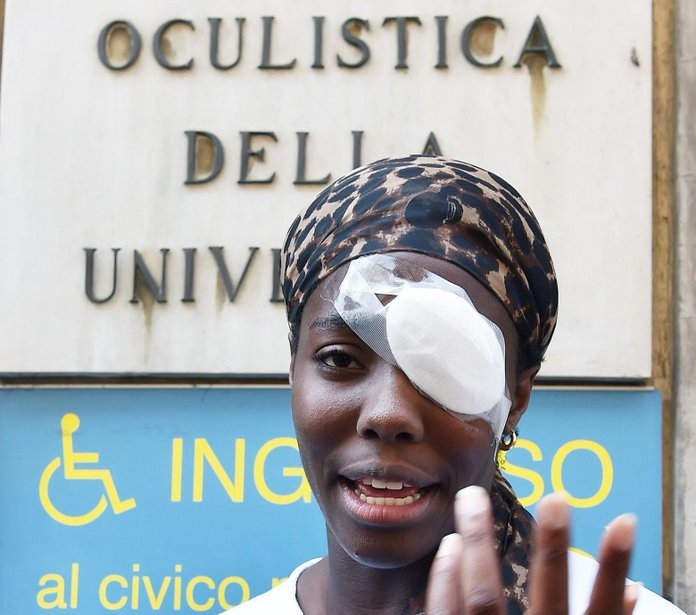 Suspected racist attacks on rise in Italy amid anti-immigrant rhetoric