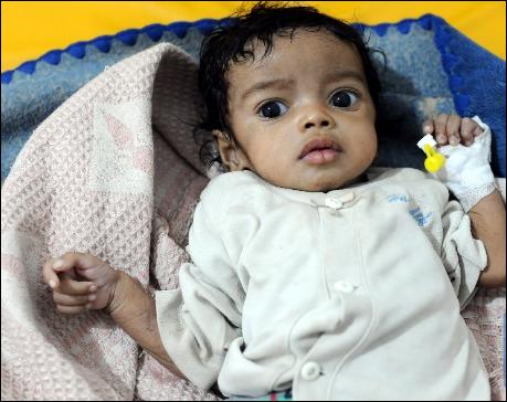 UN warns of third wave of Yemen cholera epidemic