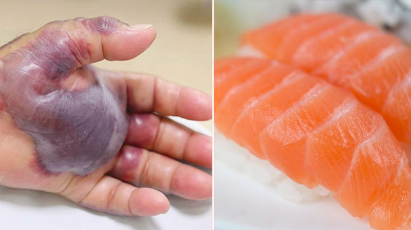 Man has arm amputated days after contracting flesh-eating bacteria from sushi